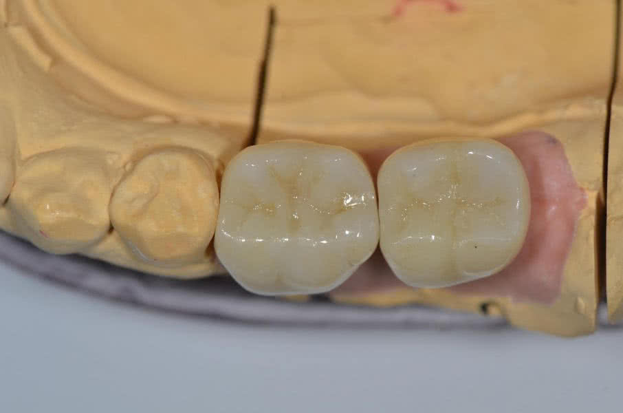 Implantate Zahnarzt Liepe Hannover Suedstadt