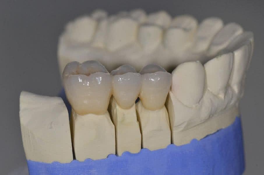 Zahnersatz Zahnarzt Liepe Hannover Suedstadt 2b