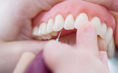 Zahnersatz – Kronen, Brücken und Prothesen