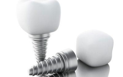 Implantologie (Zahnersatz)